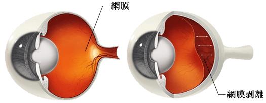 網膜剥離とは
